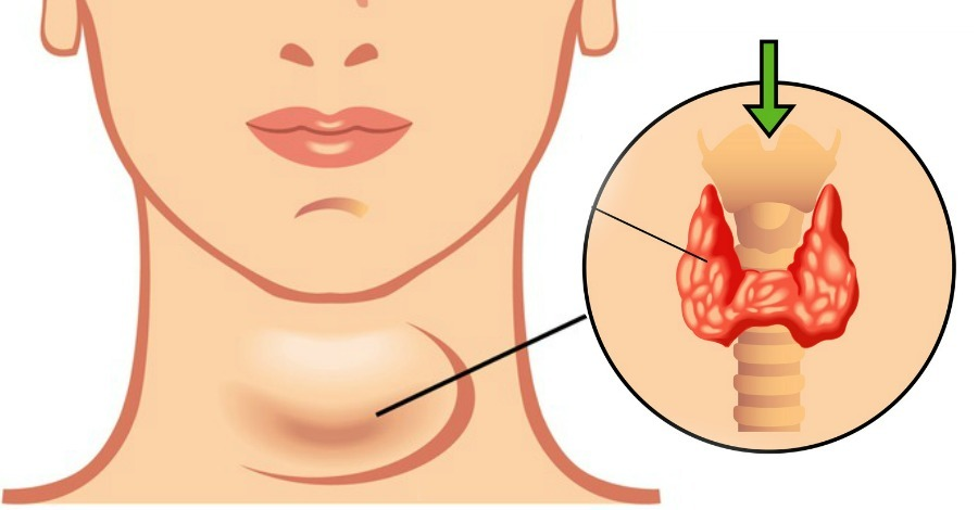 19 Symptoms of Hypothyroidism