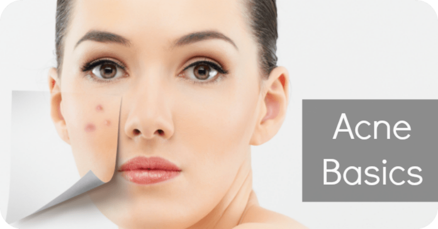 Acne Basics - Basic Care for Acne - https://healthpositiveinfo.com/acne-basics.html