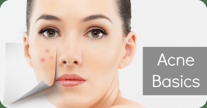 Acne Basics