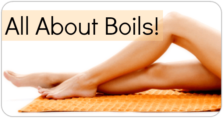 All About Boils!