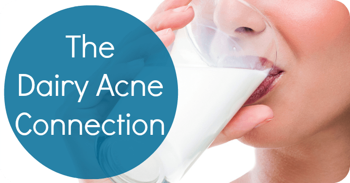 The Dairy Acne Connection