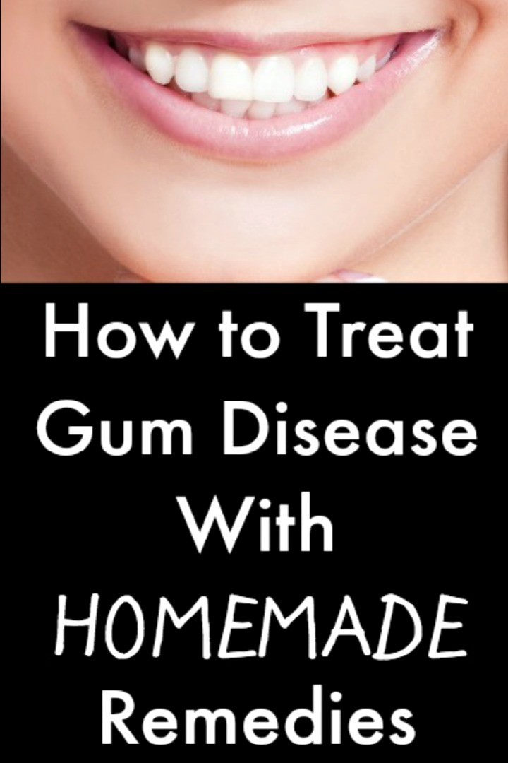 How to Treat Gum Disease Homemade Remedies - https://healthpositiveinfo.com/gum-disease-homemade-remedies.html