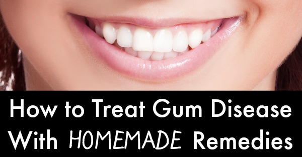 how to get rid of mouth thrush baking soda