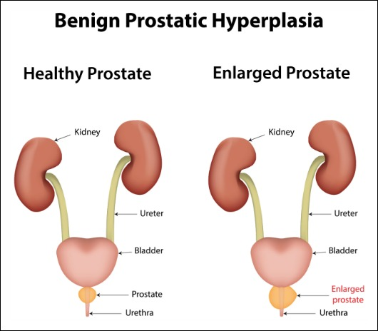 5 Things Every Man Should Know About the Prostate ~ https://healthpositiveinfo.com/prostate.html