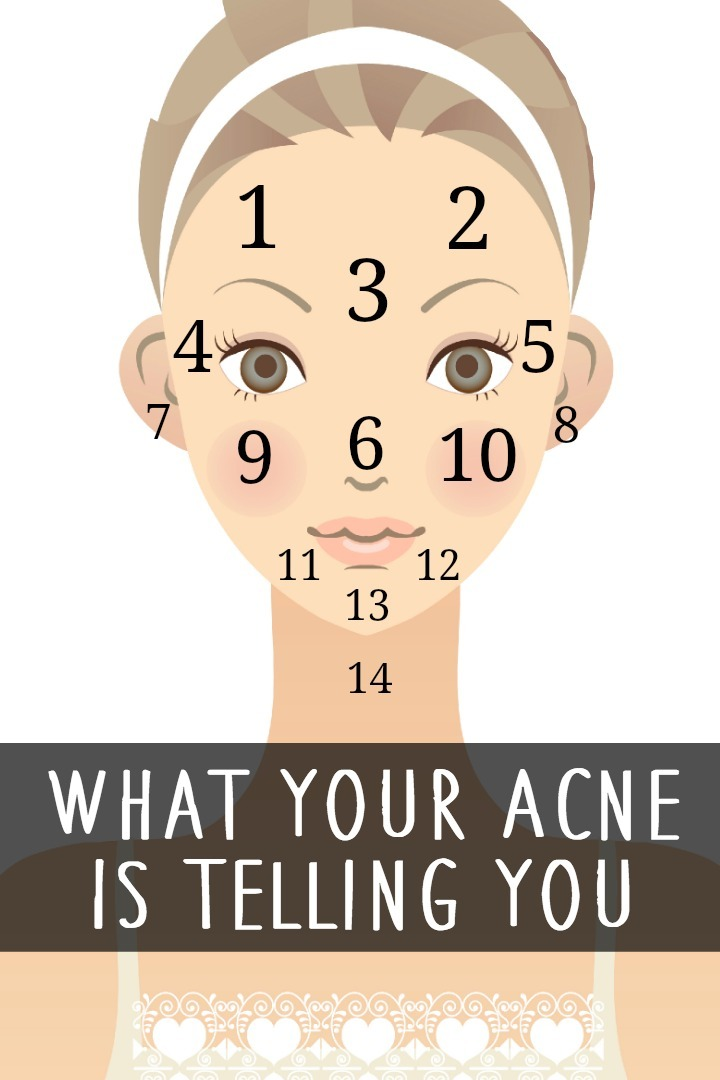 What Your Acne Is Telling You ~ https://healthpositiveinfo.com/what-your-acne-is-telling-you.html