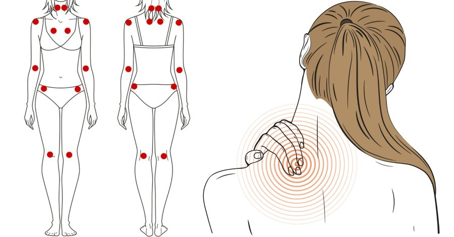 15 Common Signs and Symptoms of Fibromyalgia - https://healthpositiveinfo.com/signs-and-symptoms-of-fibromyalgia.html